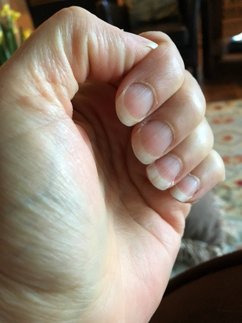 Nails after being treated with natural remedies for brittle nails.
